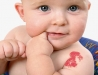 Olika typer av vaskulära födelsemärken