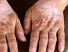 Vit hud och hudfläckar utan pigment