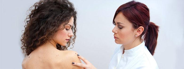 Många födelsemärken ger inte ökad risk för hudcancer