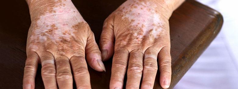inget pigment hud hudfläckar vitiligo